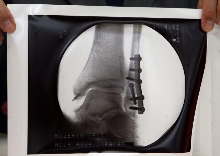 Exame aponta fratura no tornozelo de Rogério Ceni, em 2009. Foi minha pior lesão na carreira, diz o goleiro