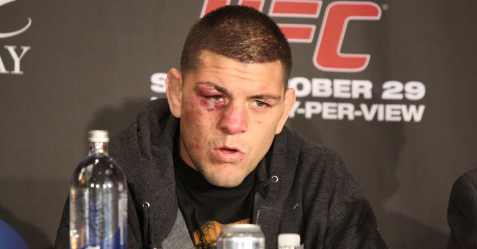 O americano Nick Diaz vai enfrentar GSP na disputa do cinturo dos meio-mdios