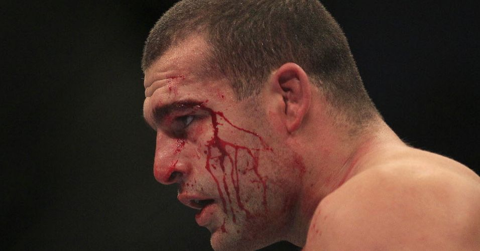 Shogun sofreu bastante na derrota para Henderson no UFC 139. Foi a sexta derrota do brasileiro que soma 20 vitrias
