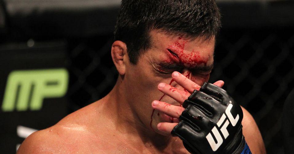 Brasileiro Lyoto Machida sangra com um corte profundo na testa, durante o desafio contra o campeão Jon Jones; norte-americano venceu por finalização