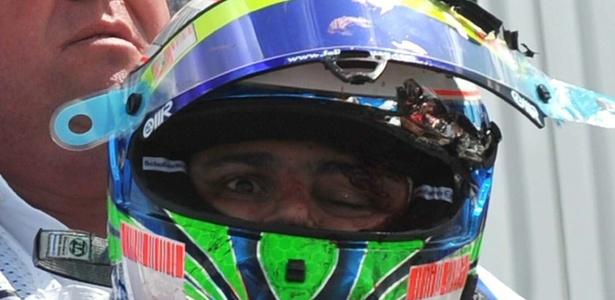 Brasileiro Felipe Massa sofre graveu acidente ao ser atingido por uma mola na Hungria