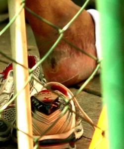 Adriano tem bolha no pé antes de jogo do Flamengo