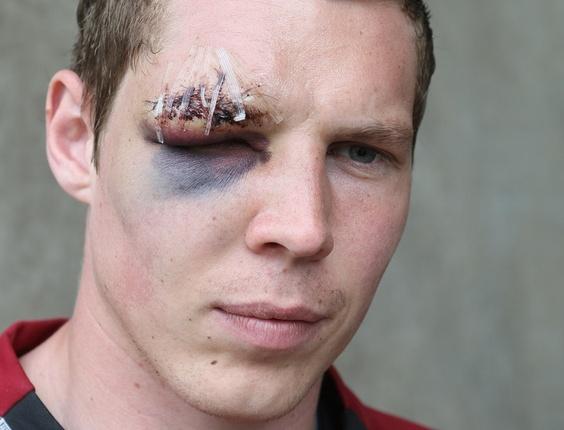 Chris Dunn, do Northampton Town, leva pontos no supercílio ao se machucar no jogo contra o Bury pela segunda divisão inglesa