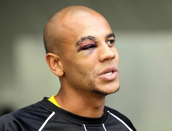 Alex Silva divulga fotos das marcas do choque que o fez levar 20 pontos no supercílio