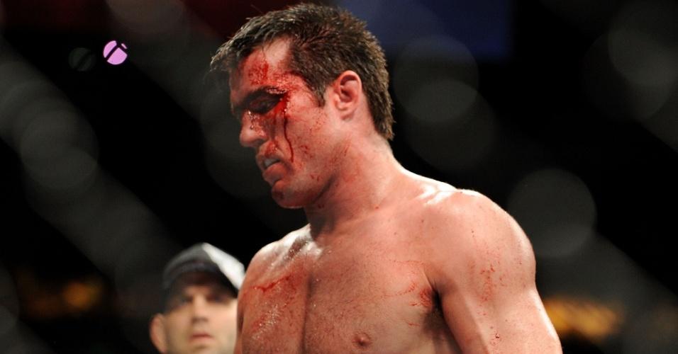 Chael Sonnen após ser derrotado por Anderson Silva no UFC 117