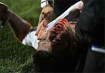 Resultado de imagem para A cotovelada dada por Fred quebrou o nariz do zagueiro romeno Chivu